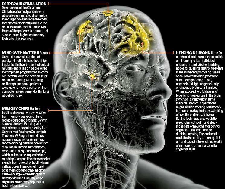 Implant for Synthetic Telepathy | NANO BRAIN IMPLANT